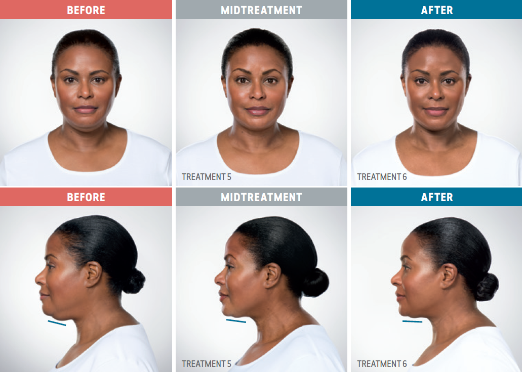 Female African American patient comparison photos from before, during, and after treatment