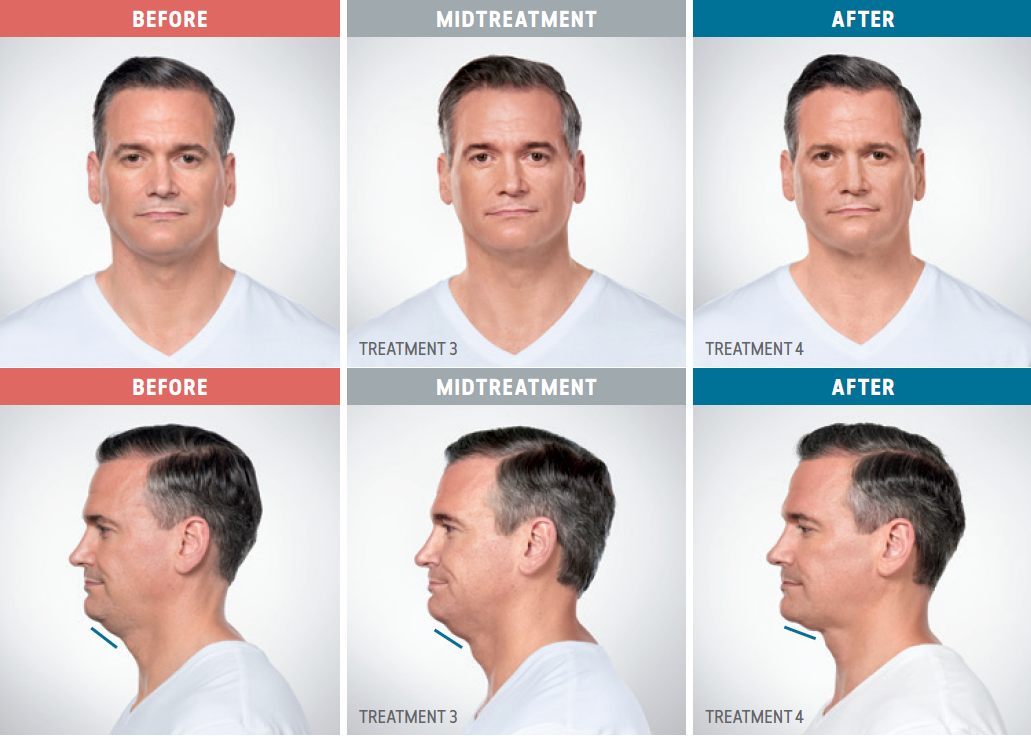 Caucasian male patient comparison photos from before, during, and after treatment