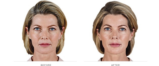 Female patient before and after Juvederm